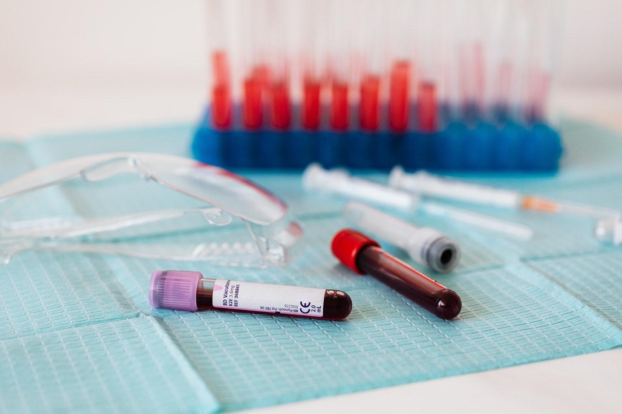 常見的孕前健康檢查項目:梅毒、愛滋病篩檢配圖